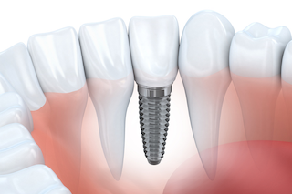 smile forever dental implant