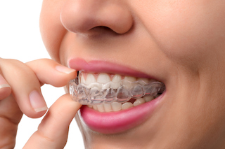smile forever woman wearing invisible braces