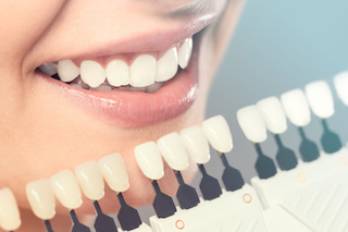smile forever cosmetic dentistry whitening