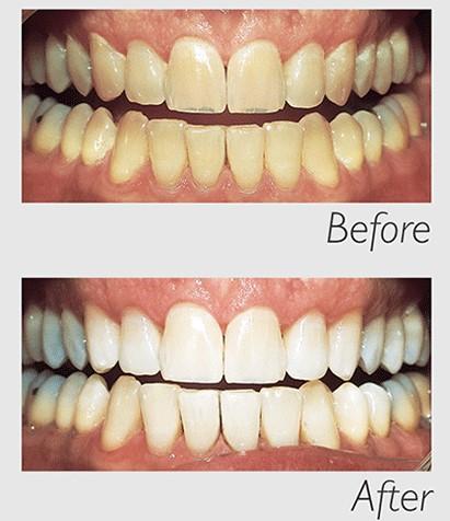 Philips Zoom Whitespeed Teeth Whitening At Smile Forever Smile